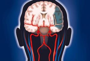 magyar agykutatók- stroke utáni felépülés