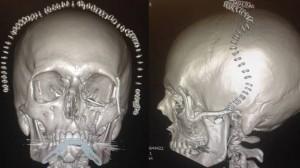 Háromdimenziós nyomtatás - így állították helyre egy beteg arcát Walesben