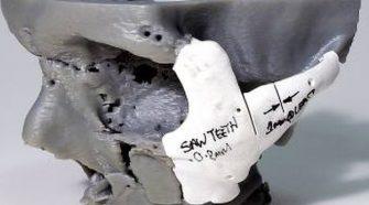 Háromdimenziós nyomtatással állították helyre egy beteg arcát Walesben