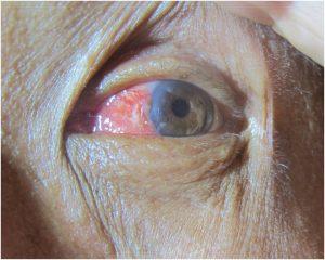 Szörfös szem - Óriási, tízméteres óceáni hullámba dugta a fejét, miközben nagy sebességgel száguldott rajta, így gyógyította meg a szembetegségét egy hawaii szörfös