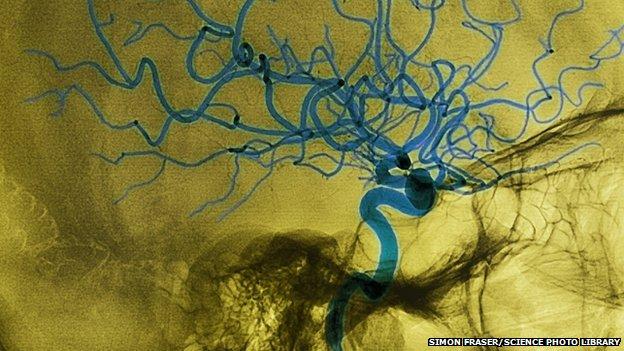 Stroke - mikrohullámú sisakkal diagnosztizálnak
