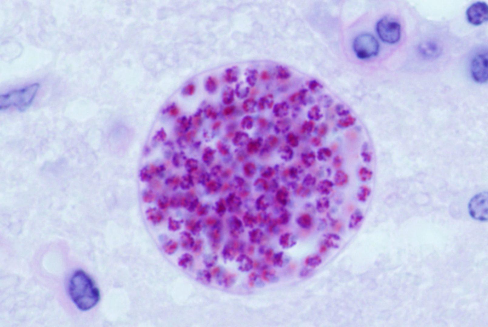 Toxoplasma_gondii - Macskaürülékből rák ellenszer