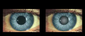 nem csak a beteg látásán - állapította meg egy új amerikai kutatás.