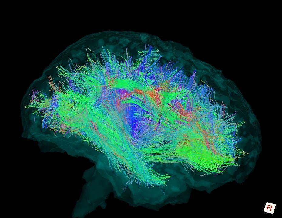 A nők agyának összeköttetései jobbak a férfiakénál cikk