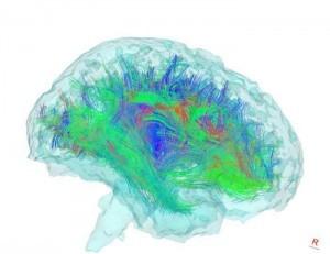 A nők agyának összeköttetései jobbak a férfiakénál metszet