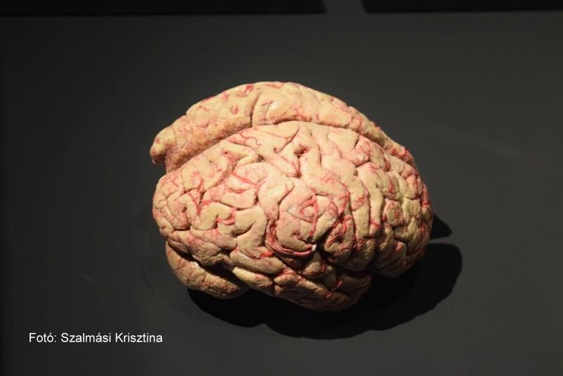 Az agyvérzésnek két fő csoportját különíthetjük el: