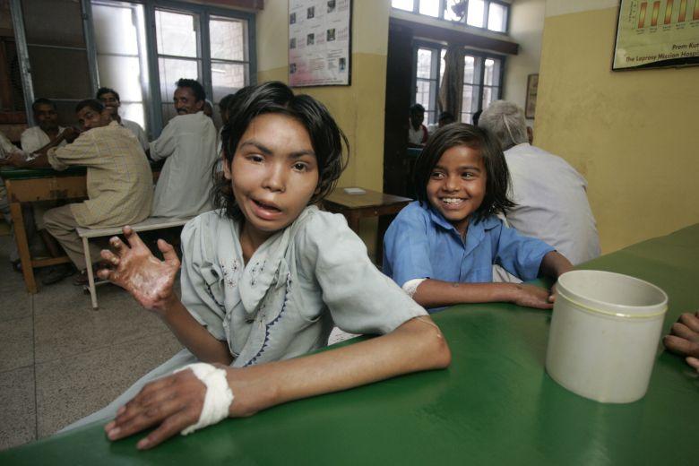 Leprabetegek Indiában.