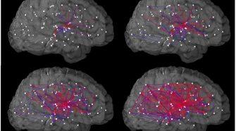 Az agyi kapcsolatok irányítása