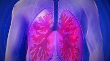 Vírusok okozzák a legtöbb gyermekkori tüdőgyulladást Afrikában és Ázsiában