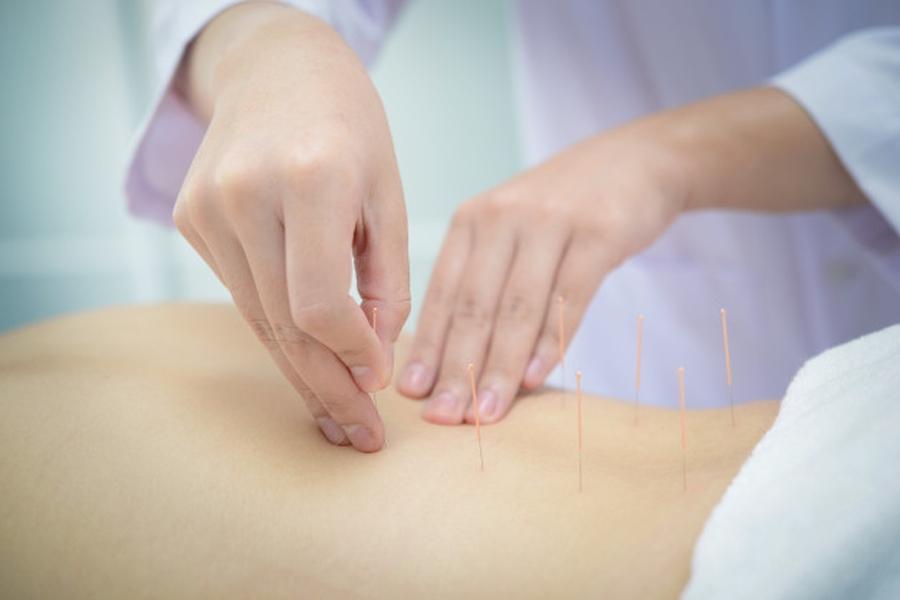 a hagyományos kínai orvoslás azonos alapokon nyugvó számtalan, Kínában, Koreában és Japánban alkalmazott eljárás laza egyvelege