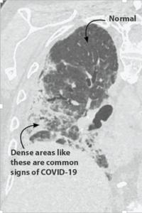 COVID-19 tüdőgyulladásban szenvedő beteg mellkasi CT-je.