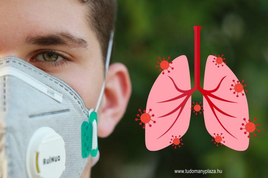 A tüdőgyulladást okozó SARS-CoV-2 vírusok a beteg felső légútjaiból származnak