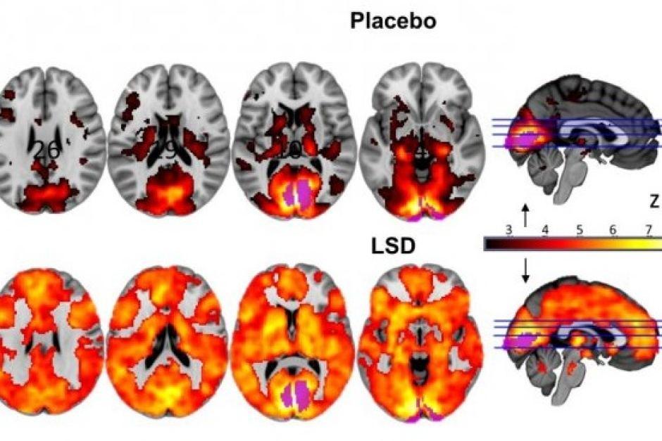 Placebo és LSD hatásai az agyban. Jobbról balra csökkenő hatás az idő előre haladtával. Hasonlóan intenzív hatás a lilával jelölt nyakszirti lebenyben, ami az agykéreg érző, vizuális-asszociatív és szimpatikus része. Forrás: ABC News