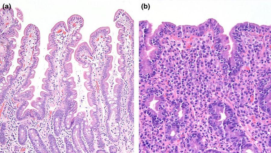 A: egészséges bélszövet, B: sorvadt felszívó hámsejtek ugyanott. Forrás: Wiley Online Library